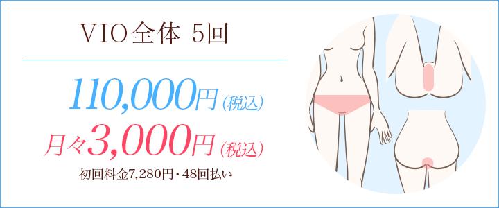 VIOハイジニーナ5回 10800円、月々5200円※初回料金7192円(24回払い)