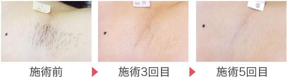 町田マリアクリニックの医療レーザー脱毛の症例
