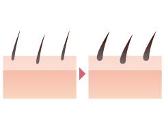 医療レーザー脱毛によって毛が濃くなる(硬毛化・増毛化)ことがあります。