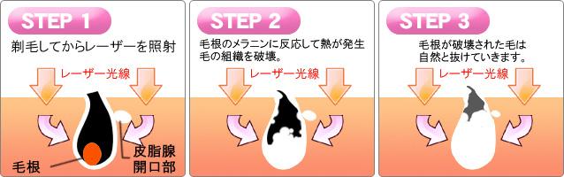 施術前→施術3回目→施術6回目
