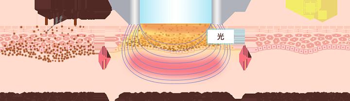 光エネルギーがシミ・くすみの原因となるメラニンを破壊