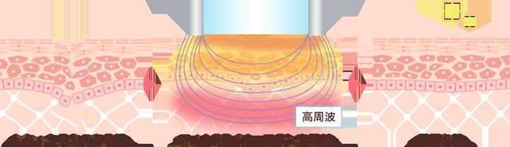 高周波がコラーゲン生成を促進。ハリのある若々しい肌へ
