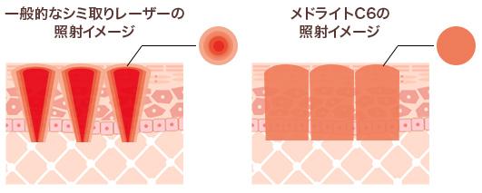 一般的なシミ取りレーザーの照射イメージ
