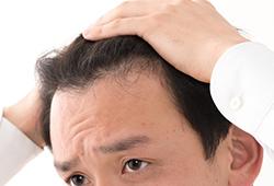 AGAは男性のみが発症する進行性の脱毛症